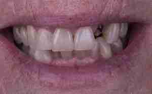 Caso de falta de diente en la parte frontal