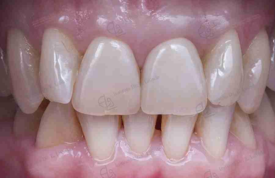 Foto de implante estético después