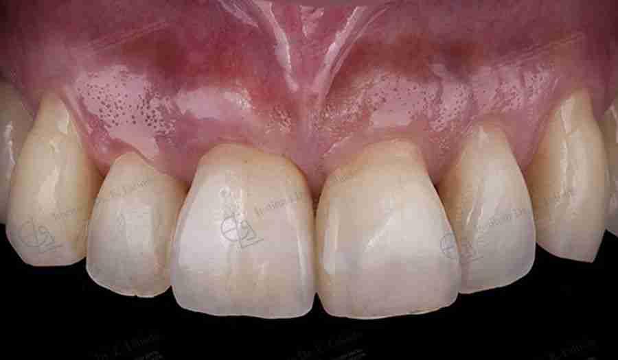 Implante estético boca