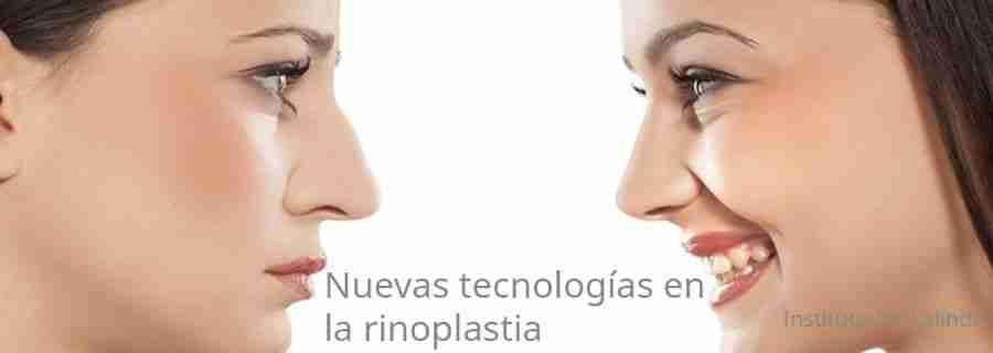 La rinoplastia en 3D