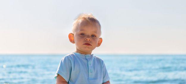 Cómo es otoplastia en niños