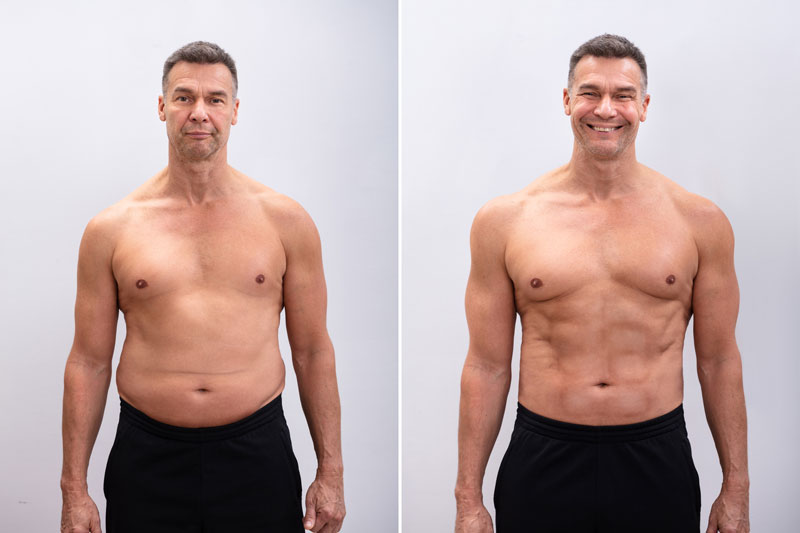 Abdominoplastia en hombres resultados