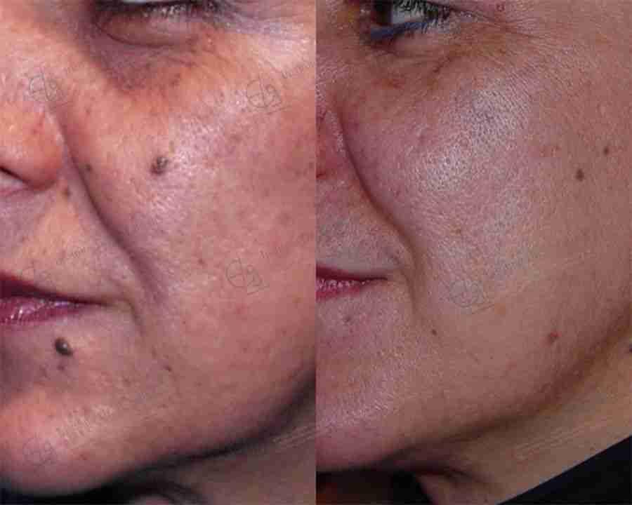 Dermoabrasión acné mujer