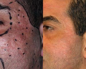 Dermoabrasión para acné