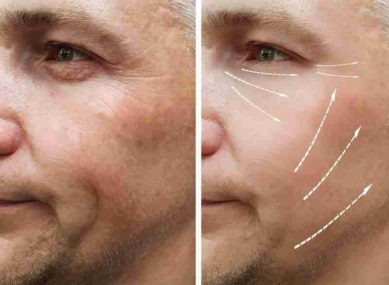 Envejecimiento: cómo envejece la piel, primeros síntomas y cómo prevenirlo 4