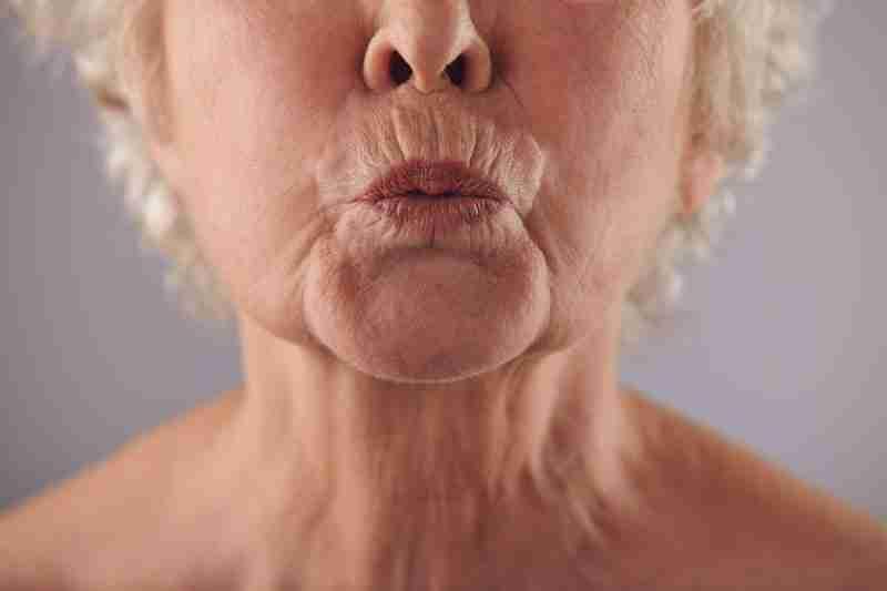 Arrugas en surco nasogeniano cómo se tratan