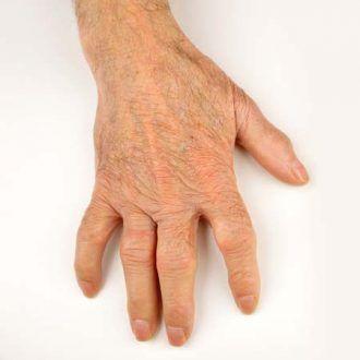 Cirugía de la mano y atritis reumatoide