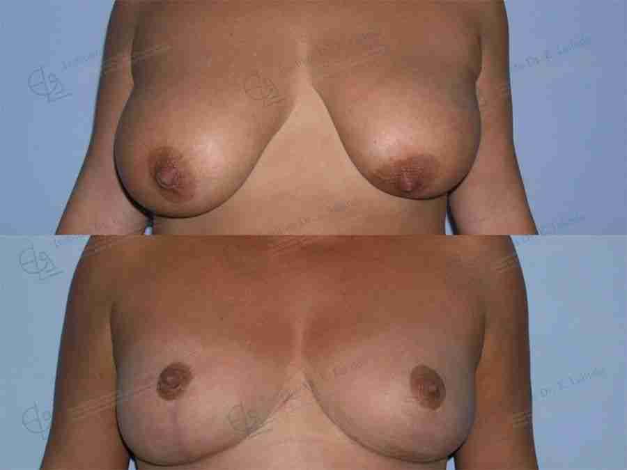 Asimetría mamaria antes y después