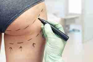 Aumento de glúteos con grasa vs prótesis, ¿cuál es mejor? 2