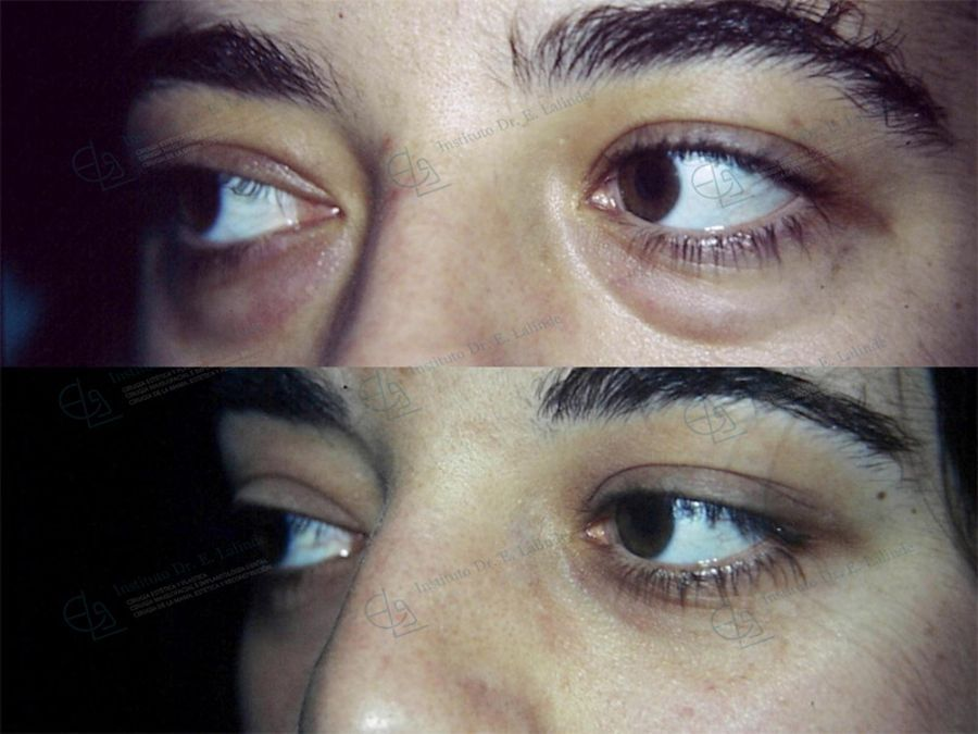 Cirugía de párpados o blefaroplastia