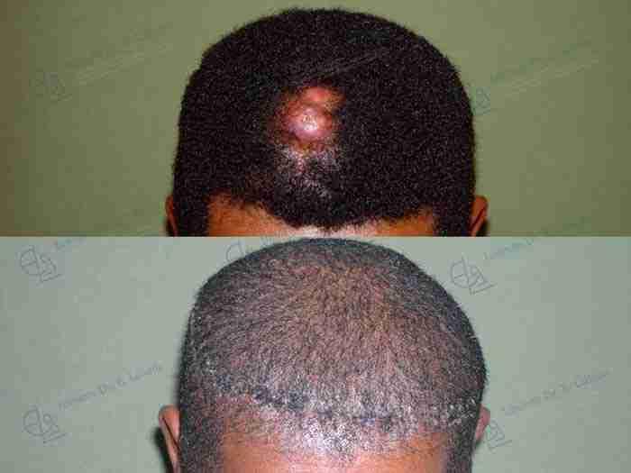 Cáncer de piel antes y después