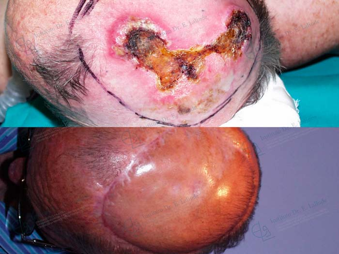 Fotos antes después cáncer de piel