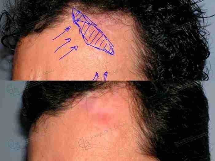 Antes y después de cicatriz en la piel cara