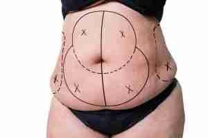 Abdominoplastia cirugía como es