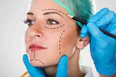 Motivos para una cirugía estética