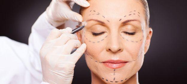 Cirugía lifting facial cómo es