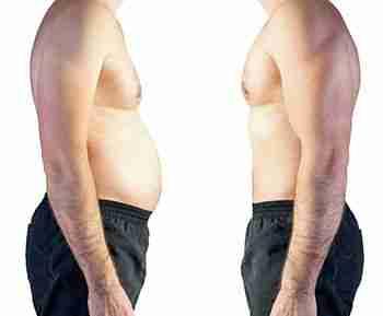 Cirugía post obesidad
