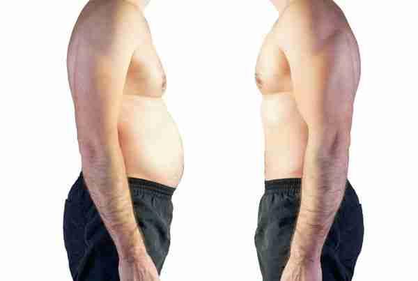 Cirugía obesidad riesgos