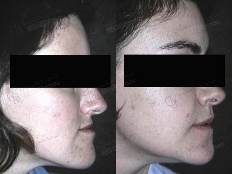 Fotos cirugía ortognática