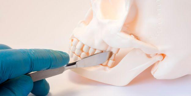 Cirugía ortognática tratamiento ortodoncia