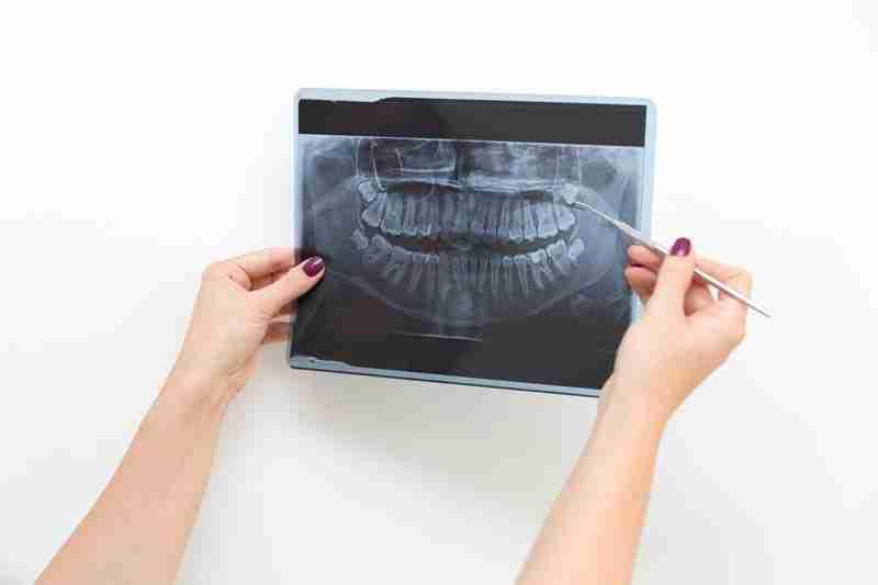 Dientes y defecto maxilar