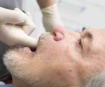 Defecto maxilar