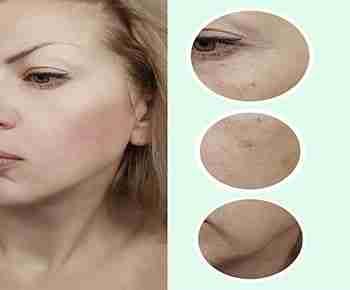 Dermoabrasión - Eliminar cicatrices