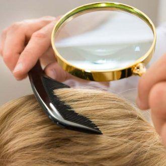 Cáncer en cuero cabelludo