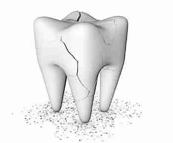 Traumatismos dentales
