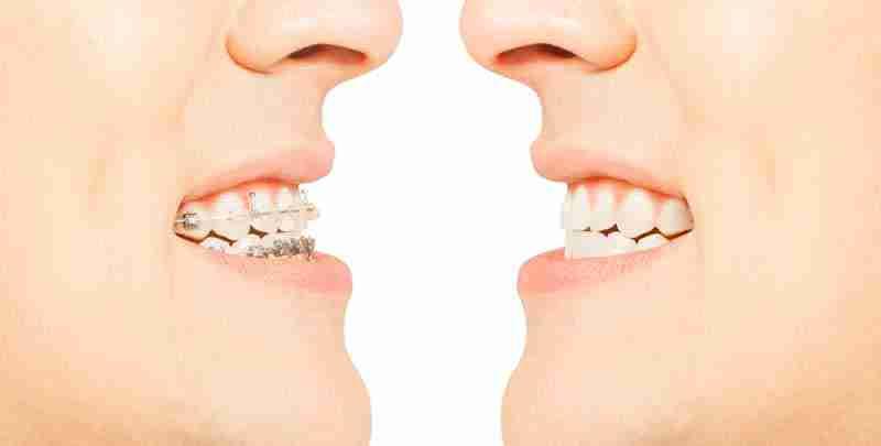 Efectos de la maloclusión dentaria