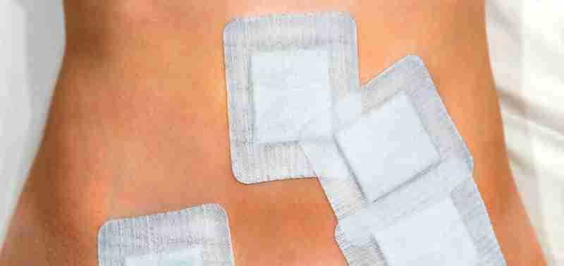 Efectos secundarios de abdominoplastia