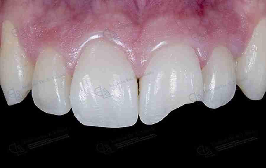 Foto endodoncia antes