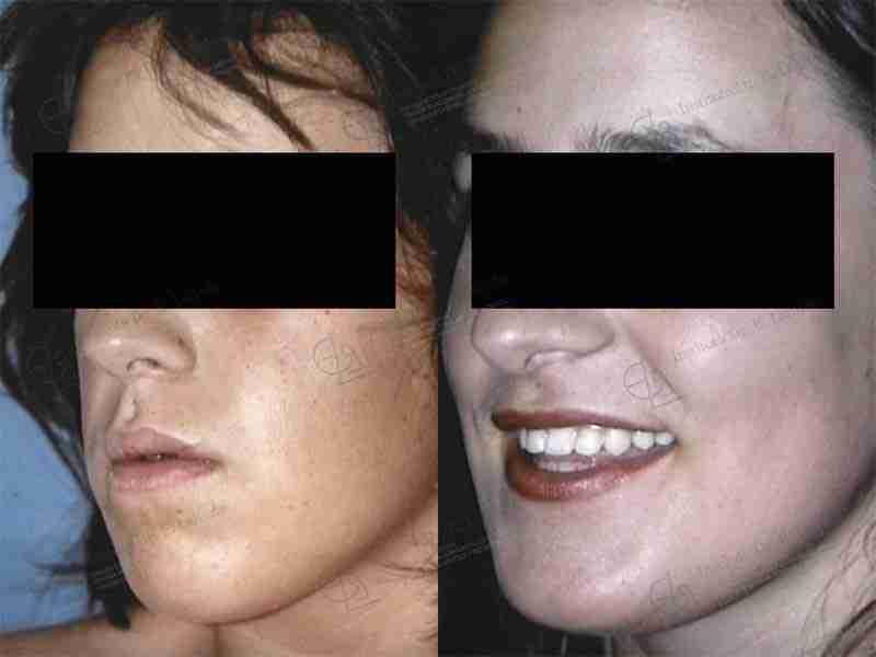 Defecto maxilar antes y después