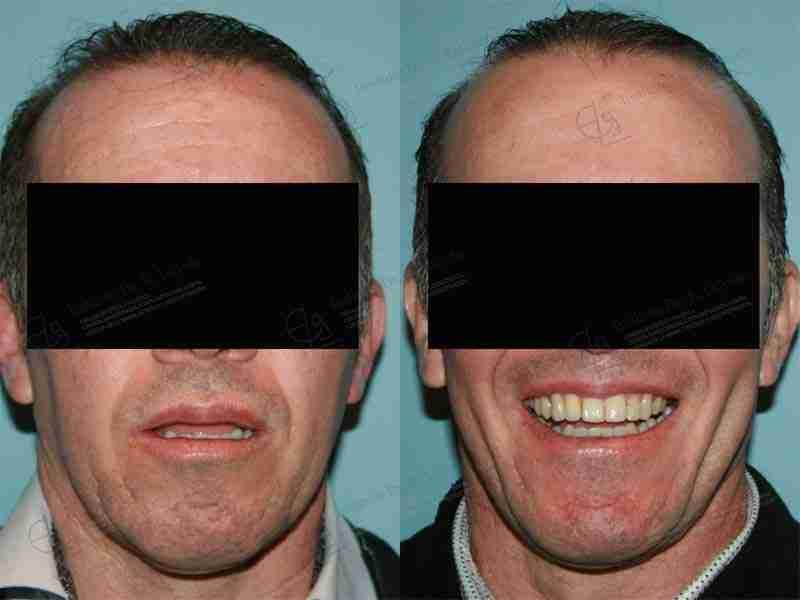 Antes y después de defecto maxilar