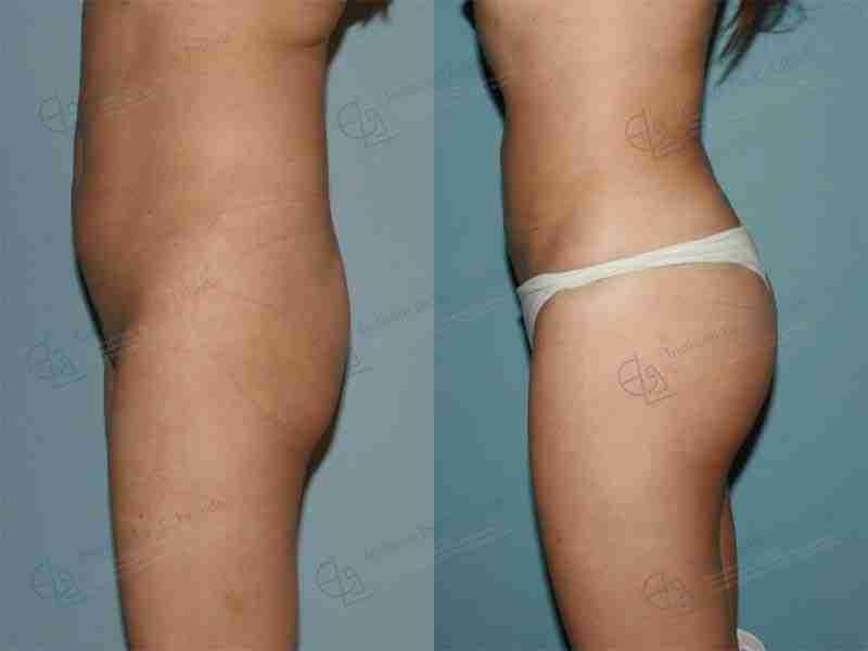Implante de glúteos antes y después