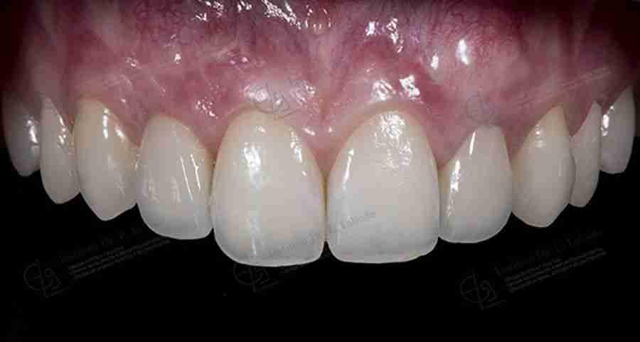 Fotos después implantes estéticos