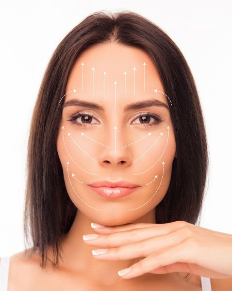 Lifting facial rejuvenecimiento