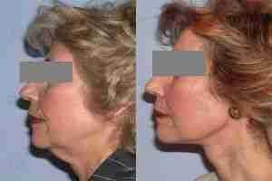 Lifting facial mujer madura