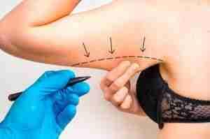¿Por qué la liposucción es la cirugía de moda en 2018? 2