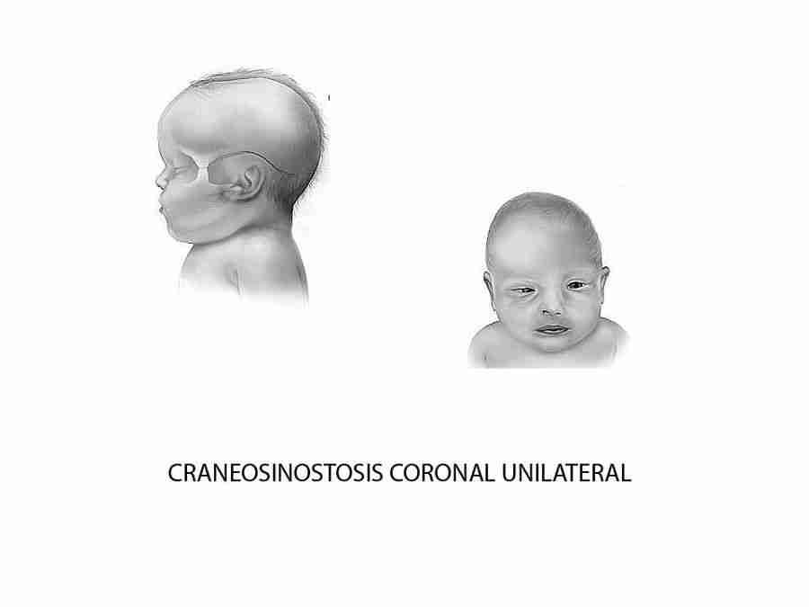 Malformación facial en niños