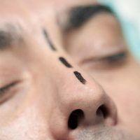 Autoestima y Malformaciones faciales