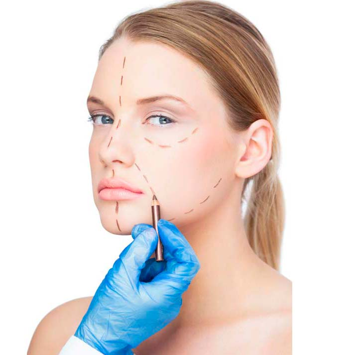 Malformaciones faciales