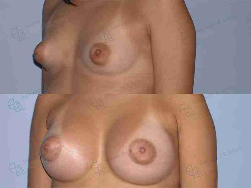 Fotos mamas tuberosas