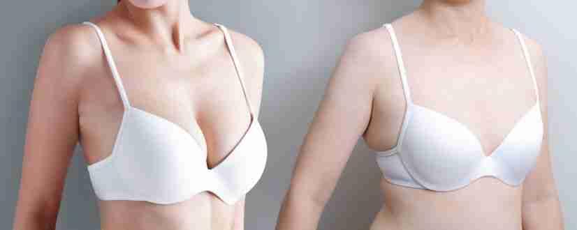Mamoplastia secundaria antes y después
