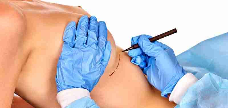 Mamoplastia secundaria qué es