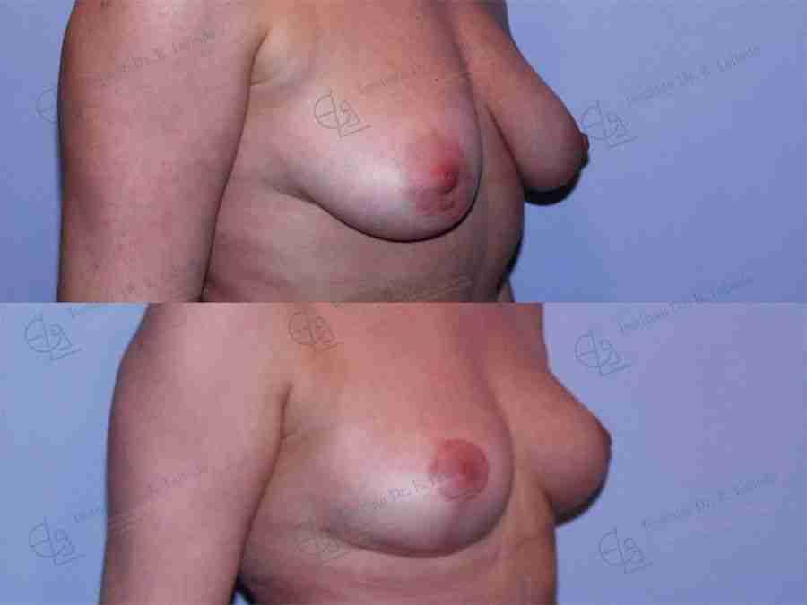Antes y después de elevación mamaria