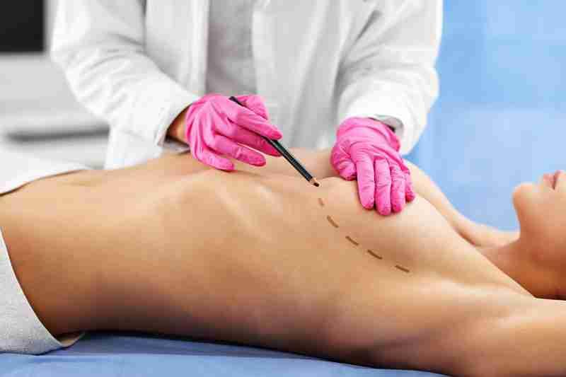 Mastopexia segunda cirugia