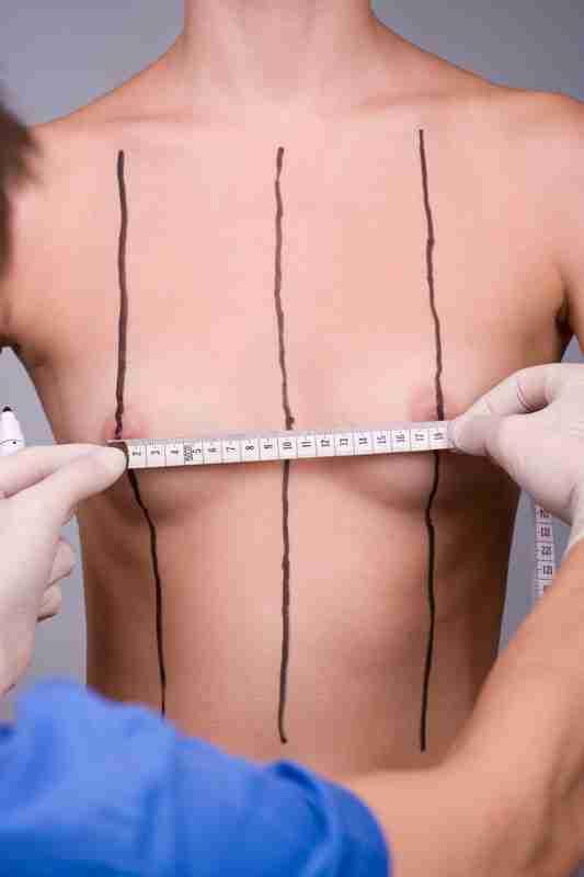 Medir tamaño implantes de mama