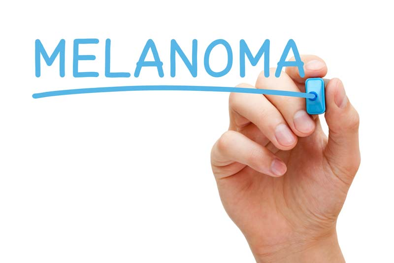 Melanoma qué es