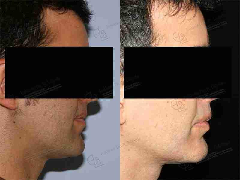 Exceso mandibular antes y después.